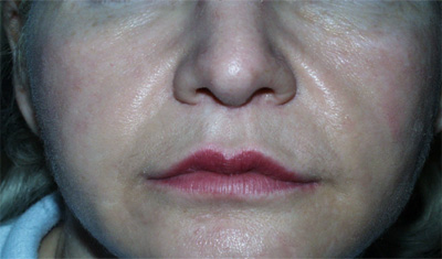 Softform facial implants